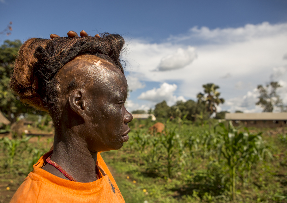 Polline Angeyo lifts her wig to reveal scars from the 1995 LRA attack on her home village of Awach in northern Uganda. Polline's story is one of many which will be told at the Global Eyewitness showcase Nov. 16.